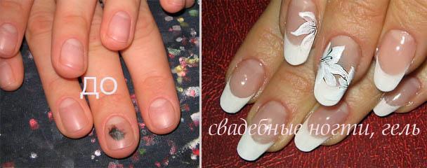 Какие должны быть ногти перед наращиванием