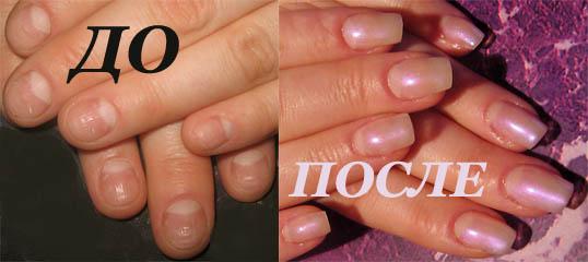 Наращивание до и после ногтей